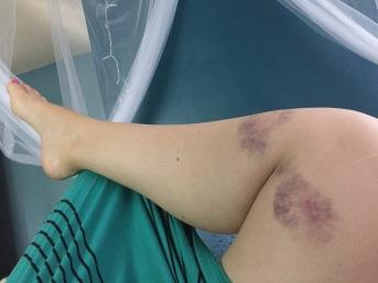 It hurt. But no permanent damage.